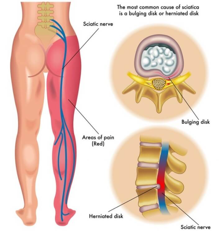 sciatica anatomy